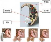 老年听力障碍的干预措施有哪些?