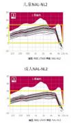 浅谈助听器处方公式NAL-NL1与NAL-NL2的区别